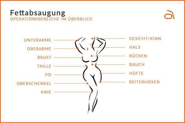 Fettabsaugung Köln