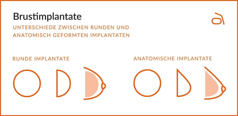 Brustimplantate – Unterschied zwischen runden und anatomisch geformten Implantaten