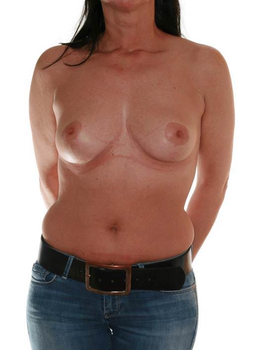 Brustverkleinerung Köln